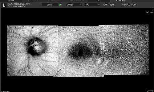 Mosaic modes: 12x5 mm - Enface view