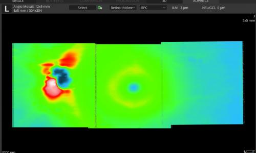 Mosaic modes: 12x5 mm - Retina Thickness map