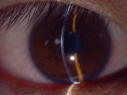 Righton_MW50D _sample_cornea slit image