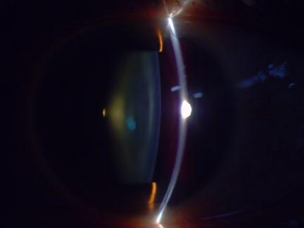 Righton_MW50D _sample_lens slit image