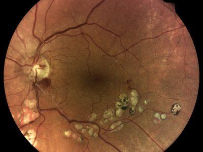 DRSplus retina_s